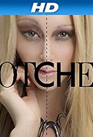 Botched S02E05